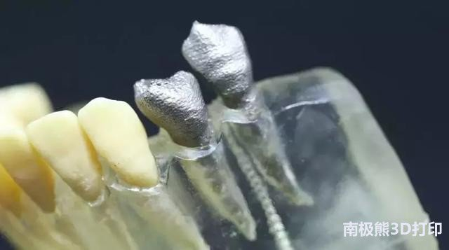 深度解析:3D图像、3D打印、3D虚拟在牙髓病学中的应用