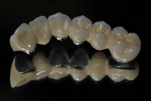深度:3D打印在口腔美学修复中的应用